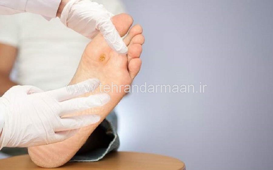 درمان زخمهای پای دیابتیک