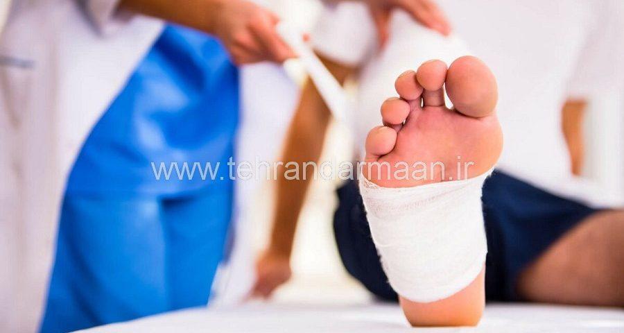 زخم های پای دیابتی