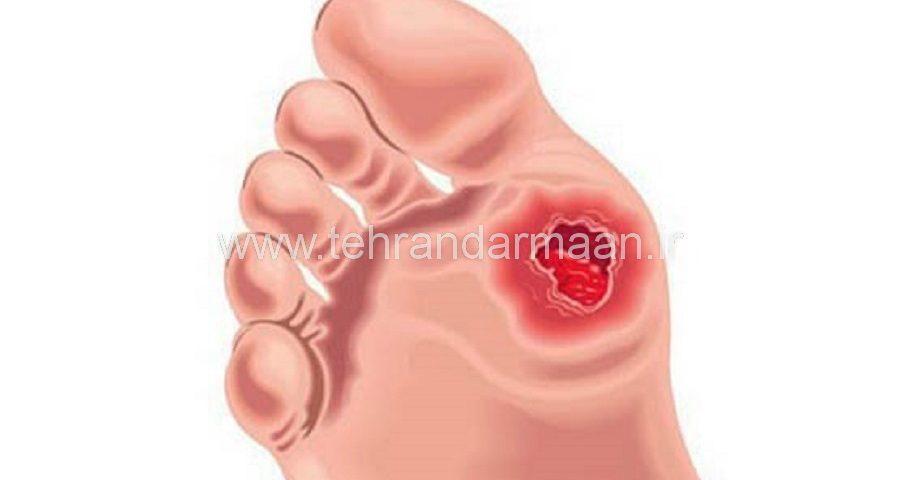 درمان زخم کف پای دیابتی